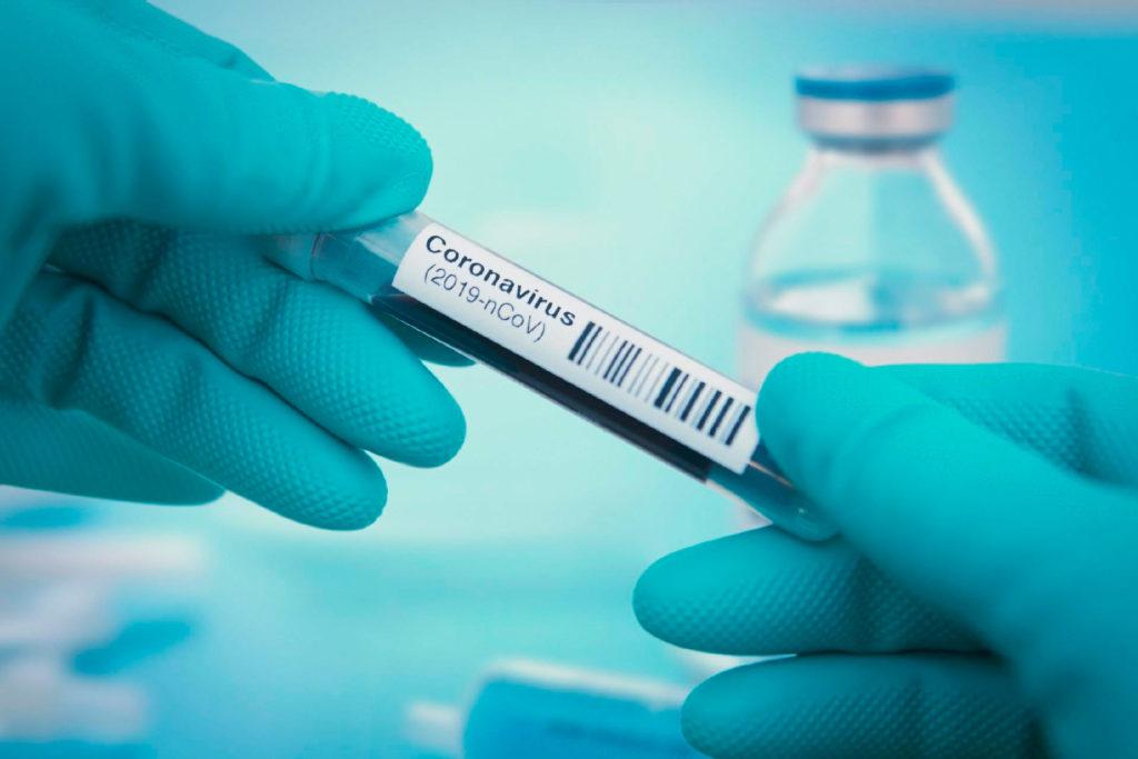 saiba como o seu hospital deve enfrentar o coronavírus